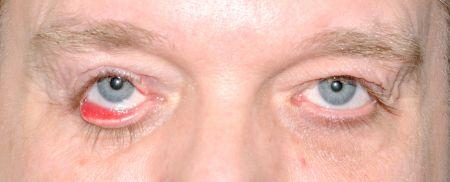 nedre øyelokk