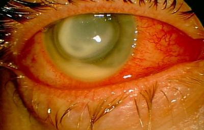 prøve om øyet